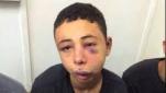 Der 15-Jährige Palästinenser Tarik Khdeir wurde Opfer israelischer Polizeigewalt